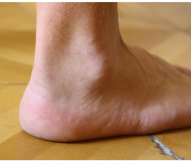 Big ankle